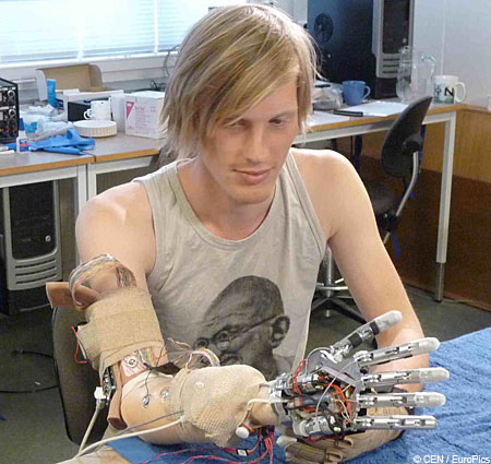 Robin af Ekenstam tries out the Smarthand prosthetic hand