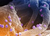 The HIV virus