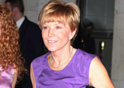 Is Anne Robinson the hairiest link?