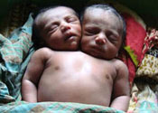 Baby boy born with two heads dies