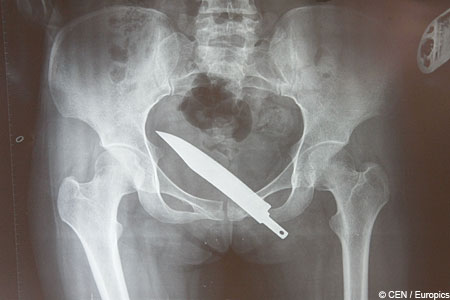 X-ray reveals bum-deal that muggers gave victim