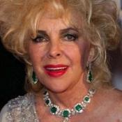 Liz Taylor set to undergo heart surgery