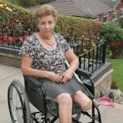 Pensioner wins payout after her leg was amputated over mistaken cancer diagnosis