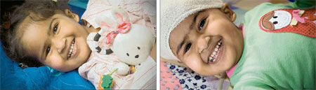Trishna and Krishna were separated after 25 hours on the operating table