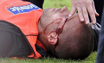 Matthew Upson suffers head injury at pre-World Cup training camp
