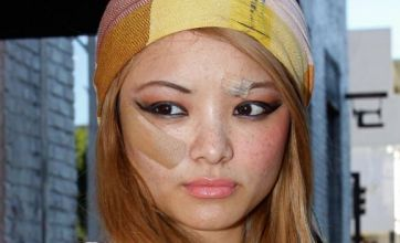 Tila Tequila covered in bandages after attack