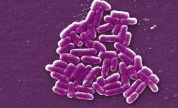 Restaurant dishcloths full of bacteria