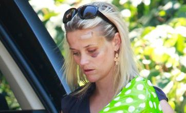 Reese Witherspoon sports black eye in stepping out after being hit by car