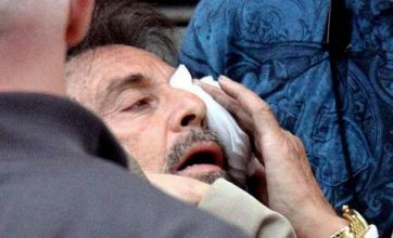 Al Pacino injures eye filming fight scene on the set of Stand up Guys