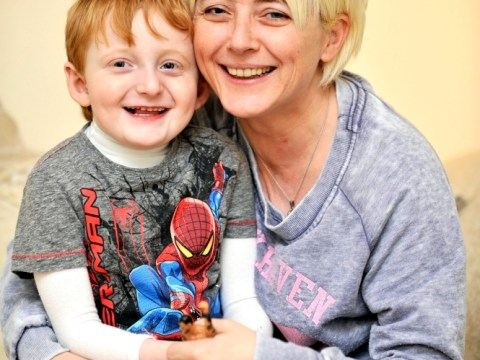 Boy, 4, to have liver transplant to stop skin constantly itching