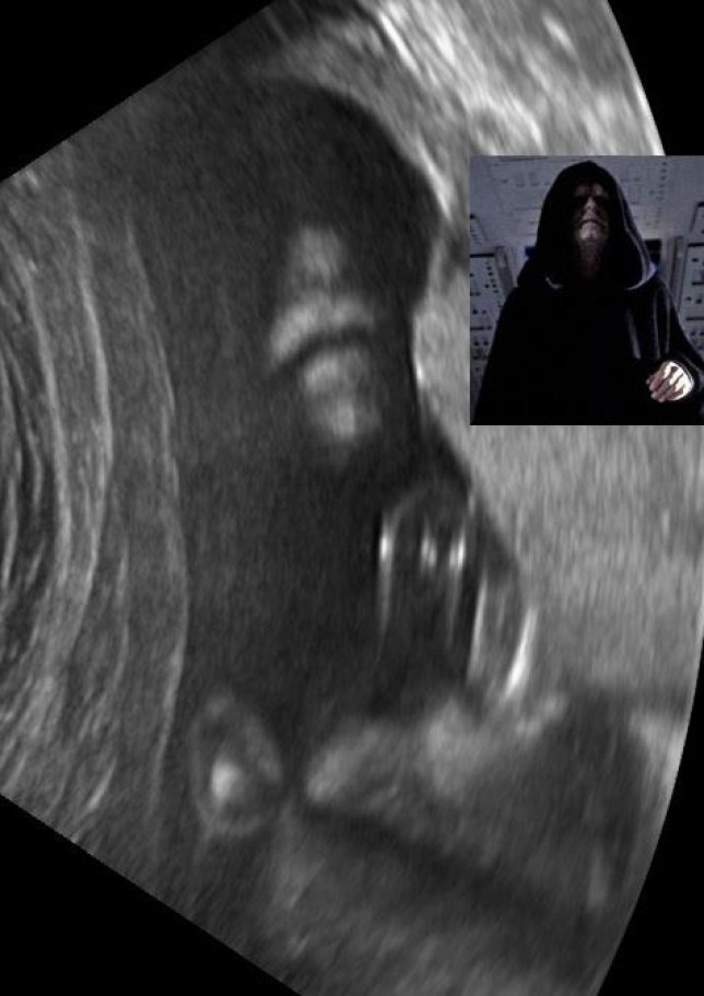 "Mandatory Credit: Photo by Rex Features (2206028b)    May The Face With You: Ultrasound Scan Looks Like Star Wars Emperor  May the face be with you!    A couple got a shock when they noticed their unborn baby's scan looked like the evil Emperor from the Star Wars films.    Heather Large, 39, immediately spotted the seemingly cloaked figure during the hospital ultrasound.    Husband Toby, 33, from Pingree Grove, Illinois, explains: ""During the ultrasound, Heather noticed that one of the images appeared to look like Emperor Palpatine from Star Wars.     ""At this point, everyone in the room had a laugh, including our eight-year-old daughter Hannah and the ultrasound technician.    ""At the end of the ultrasound, the tech asked us if we would like to include that image on our take-home CD, since we were so amused.""    Toby only realised the scan of his son Bowie, who is now eight months old, would cause a fuss among Star Wars fans when he uploaded it to his webpage last week.    ""And now Heather is both amused and slightly disturbed that images of her uterus are making the rounds on the internet,"" adds Toby.      MANDATORY CREDIT: Toby Large/Rex Features      For more information visit http://www.rexfeatures.com/stacklink/CNXINWDDJ"