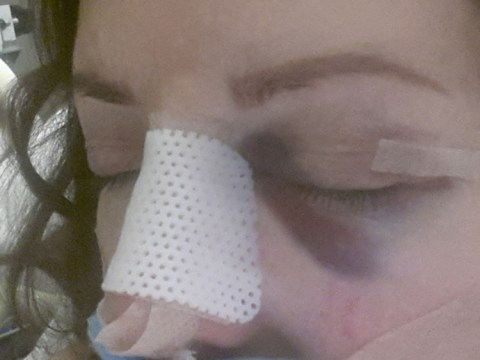 Carol Vorderman thanks fans after she breaks her nose tripping down stairs in 4in heels