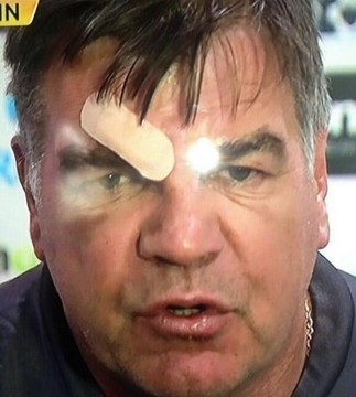 Sam Allardyce sports huge plaster on eyebrow after falling out with his kitchen