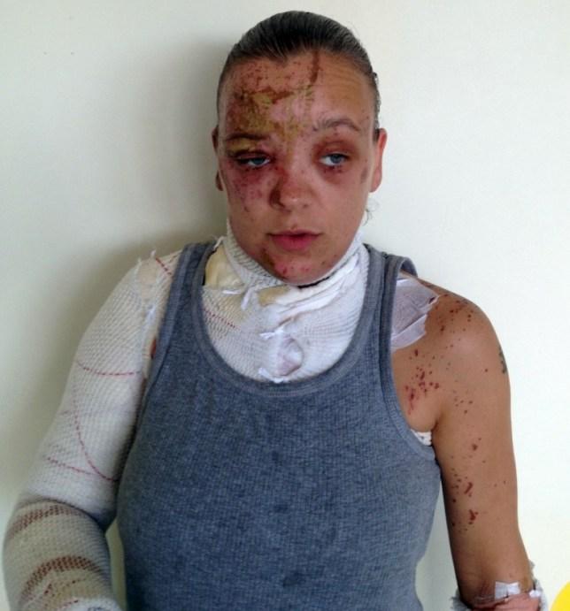 Tara acid attack victim