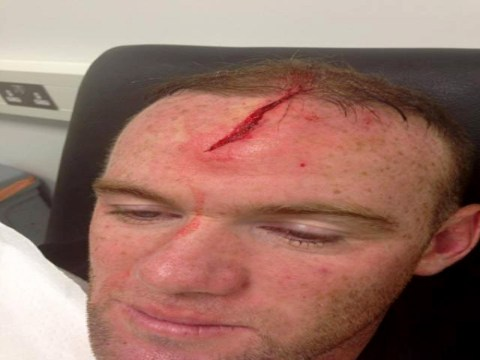 Wayne Rooney shows off gruesome head injury to show doubters he's not fit for England