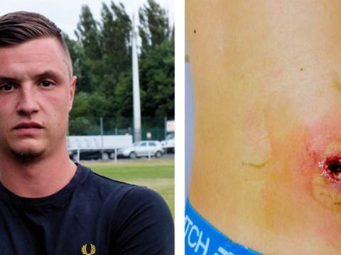Footballer relegated to hospital after venomous false widow spider takes a bite