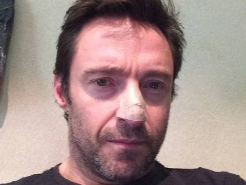 Hugh Jackman diagnosed with skin cancer, takes selfie