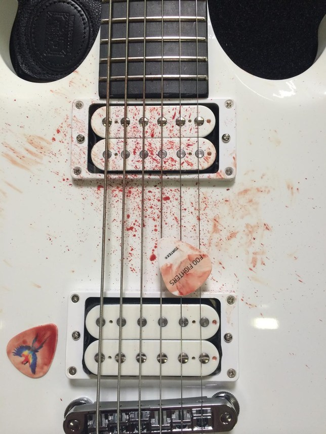 Foo Fighters' bloody guitar