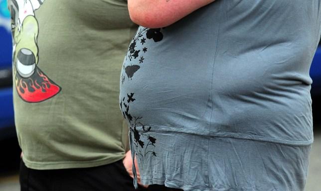 obesity, fat