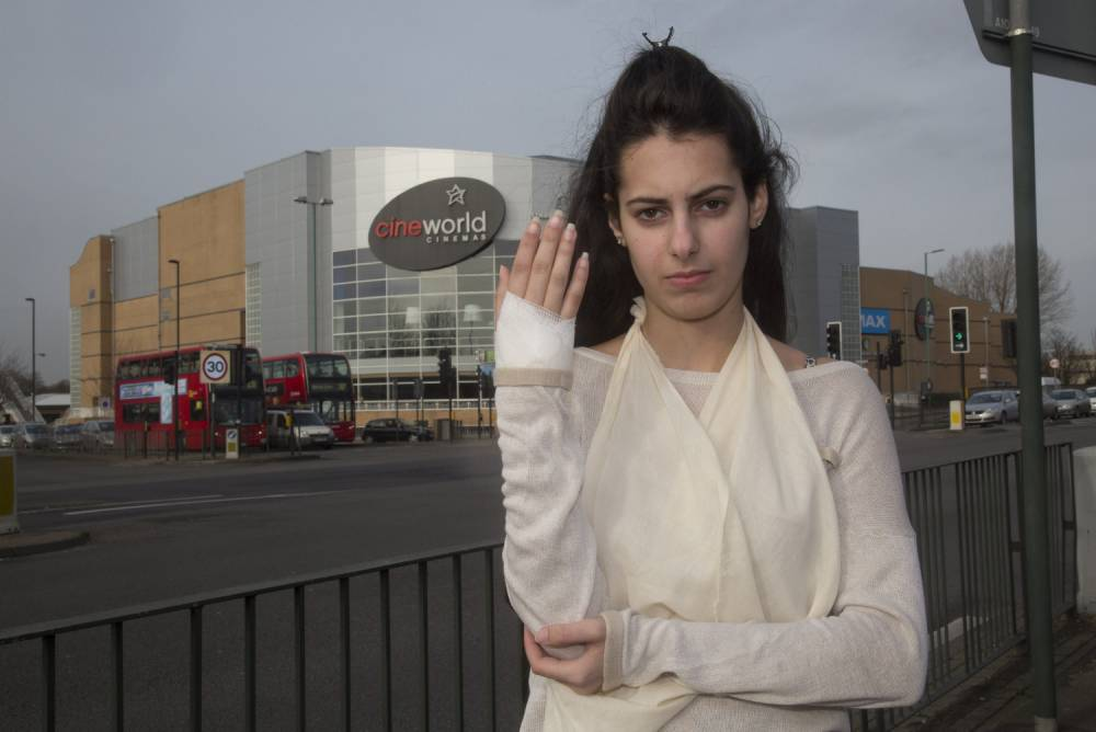 Worst date ever? Teenager left with hole in hand after cinema spider bite
