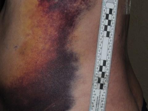 Boy, 15, arrested after disabled pensioner brutally attacked on Stockport bus