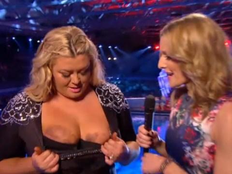 Splash!: Gemma Collins shows 'battered and bruised' breasts after botched dive