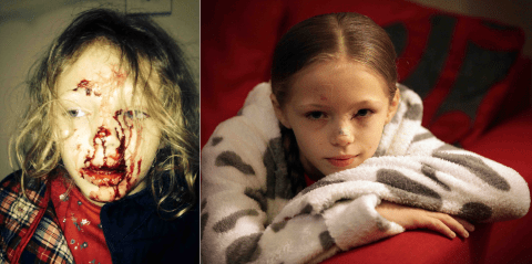 Nine-year-old girl scarred for life after thug hurled glass beer bottle through car window