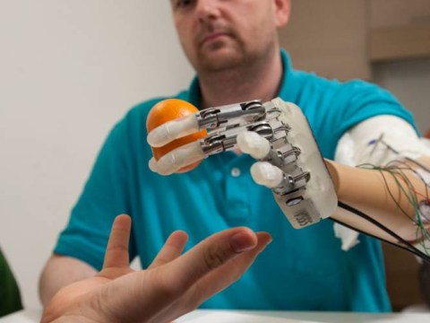 Bionic hand restores amputee's sense of touch