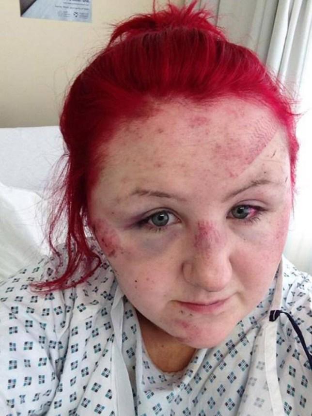 Kathleen McDade: Teen left with footprint on forehead after Stevenston  assault