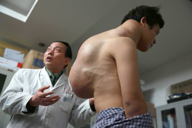 Man undergoes surgery to remove 10kg tumour