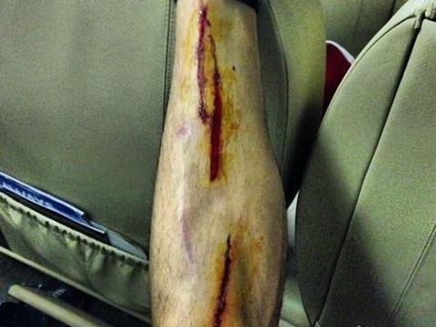 Southampton's Jose Fonte shows off gruesome leg injury