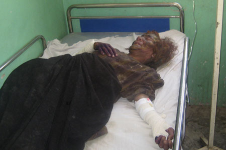 An injured Afghan woman from the Bala Baluk, district of Afghanistan, is seen on a bed at the hospital in Farah province of Afghanistan.