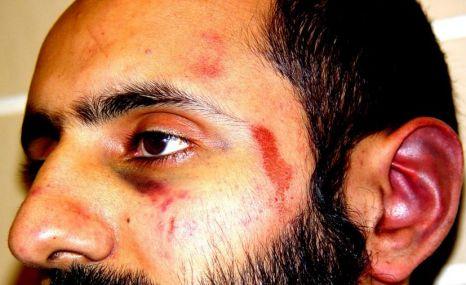 Babar Ahmad injuries