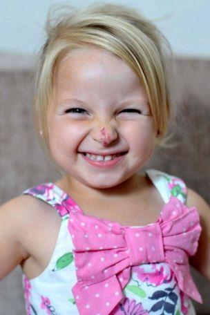 Connie Lloyd 'clown-nose' birthmark