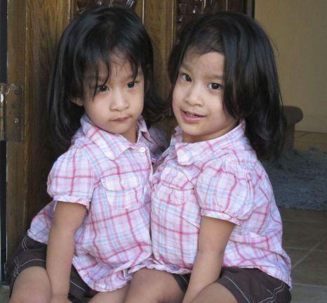 Angelic and Angelina Sabuco cojoined twins California