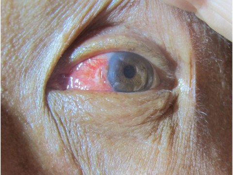 Surfer uses massive wave to perform DIY surgery on his eyeball