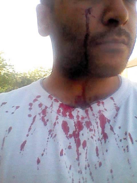 Ukip candidate claims he had cheekbone and eye socket broken in 'assault by Muslim neighbour'