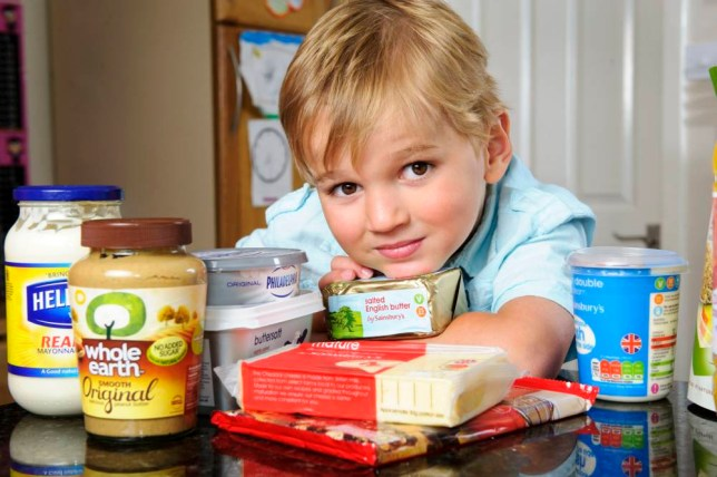 PIC BY SIMON JACOBS / CATERS NEWS - (PICTURED: Charlie Smith) - An epileptic youngster who had 300 fits a day has had his life transformed thanks to eating BUTTER. Little Charlie Smith, 6, from Epsom, Surrey was forced to wear a helmet during the day because he would suffer from up to 300 seizures and drop attacks, which would cause him to lose consciousness. The youngster was taking a cocktail of drugs, which left him drowsy and had little effect on his fits. So when a consultant suggested the family try a radical diet overhaul, his parents Debbie and Wayne never imagined the results would be so positive. Within three weeks of putting Charlie on a high fat, low carbohydrate ketogenic diet, he had stopped having seizures completely. SEE CATERS COPY