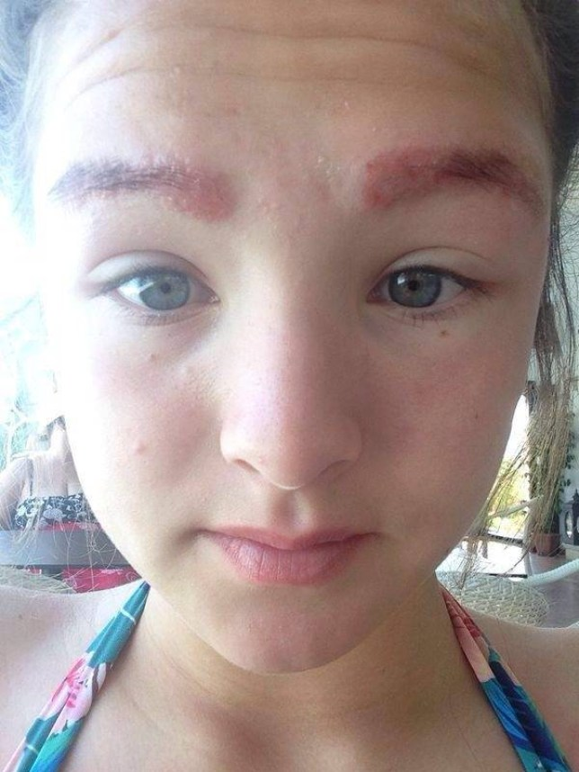 Schoolgirl Has Her Eyebrows Burnt Off By Local Beauty Salon After