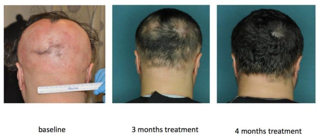 Embargoed to 1800 Sunday August 17 Undated Columbia University Medical Center handout photo showing the effects of the drug ruxolitinib on a patient with severe alopecia. Over a period of four months the pill completely restored his hair growth. PRESS ASSOCIATION Photo. Issue date: Sunday August 17, 2014. A pill that appears to cure alopecia baldness has fully restored the hair of three patients. Doctors conducted the pilot trial after identifying the immune cells responsible for destroying hair follicles in people with the condition. See PA story HEALTH Bald. Photo credit should read: Julian Mackay-Wiggan/Columbia University Medical Center/PA Wire NOTE TO EDITORS: This handout photo may only be used in for editorial reporting purposes for the contemporaneous illustration of events, things or the people in the image or facts mentioned in the caption. Reuse of the picture may require further permission from the copyright holder.