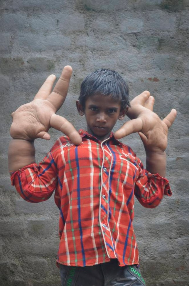 *** EXCLUSIVE - STRICT ONLINE ONLINE EMBARGO UNTIL 02:00 WEDNESDAY 20/08 *** EAST INDIA - JULY 2014: Eight-year-old Kaleem shows his abnormally large hands in his hometown, East India. A YOUNG boy is baffling doctors in India - after his hands swelled to giant proportions. Eight-year-old Kaleem's hands weigh eight kilograms each and measure 13 inches from the base of his palm to the end of his middle finger. The cricket fan is unable to do many basic tasks - including tying his shoes laces - and has been bullied and shunned most of his life. His parents, who live in eastern India, and earn just £15 a month, have been desperately trying to find help for their son but to no avail. Doctors have been left baffled by his condition but believe it may be the result of either lymphangioma or hamartoma - both treatable conditions. PHOTOGRAPH BY Barcroft India UK Office, London. T +44 845 370 2233 W www.barcroftmedia.com USA Office, New York City. T +1 212 796 2458 W www.barcroftusa.com Indian Office, Delhi. T +91 11 4053 2429 W www.barcroftindia.com