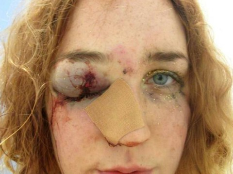 Woman shares shocking selfie after being punched in the face at Notting Hill Carnival
