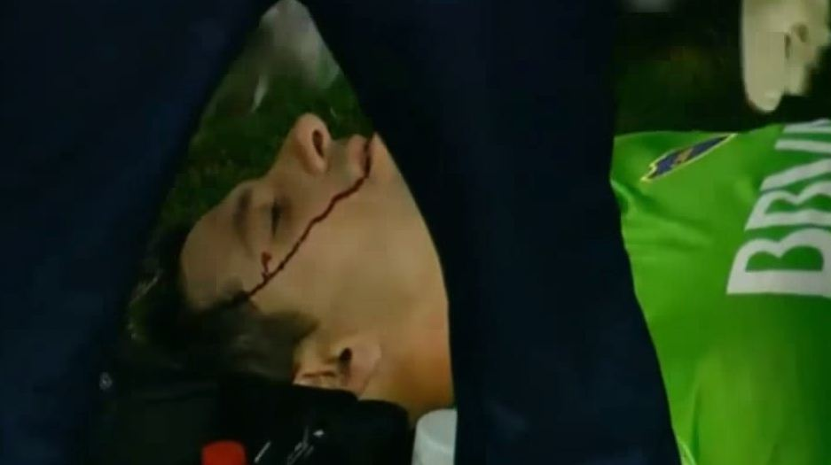 Boca Juniors' goalkeeper Agustin Orion struck by rock thrown from crowd in Copa Sudamericana clash with Rosario Central