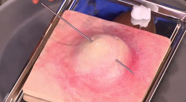 The parallel technique will only hit the dead part of the spot, Dr Oz explained(Picture: The Oprah Winfrey Show)