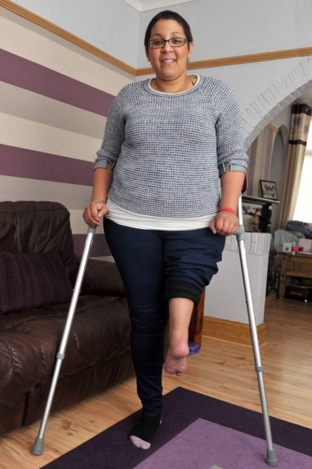 PIC FROM CATERS NEWS - (PICTURED: Jordon Moody) - A young amputee has undergone radical surgery to create a new knee joint by using her LEFT FOOT. Jordon Moody underwent the rotationplasty after bone cancer meant her thigh had to be amputated. The 22-year-old from Hull, East Yorkshire, now has her toes twisted backwards and her heel is at the front. Surgeons attached the foot so an artificial limb can be attached to the new joint that has been created. SEE CATERS COPY.