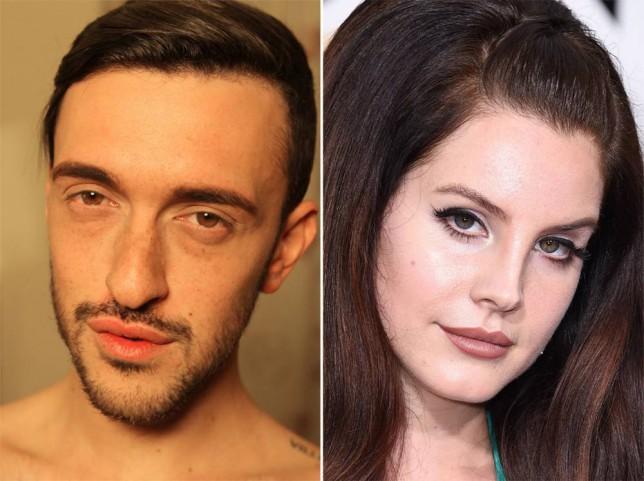 Bodyshockers' Dean wanted Lana Del Rey lips, instead he got this…