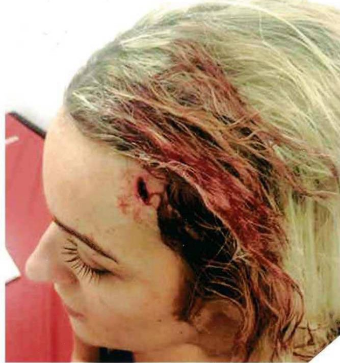 Dated: 04/02/2015 GLASS ATTACK HORROR ... Glass attack victim April Parslow, 22, who has spoken of her ordeal after she was forced to move abroad after Nikki Harrison glassed her in the face when she rejected his advances in a nightclub.  Picture shows the injuries sustained during the attack. See story North News