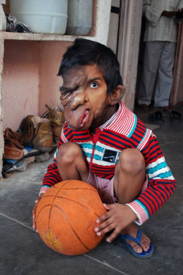 *** EXCLUSIVE - VIDEO AVAILABLE *** JAIPUR, INDIA, NOVEMBER, 19, 2014 - 7-year-old Aditya Mishra who has a severe facial tumour on November, 19, 2014 in Jaipur, India. A SEVEN-YEAR-OLD boy has a huge facial tumour which has stretched and blackened his face ñ leaving other children scared of him. Aditya Mishra suffers from a rare facial condition which has blinded him in one eye. The child, from Ramnagar Sodhala in Jaipur, was born healthy but over time a cancerous tumor has deformed his features. The young boy is often taunted with terms like 'ghost' or 'monkey' and other children run away from him in fear. Adityaís mother Neetu Mishra has the painful experience of seeing her son live an isolated and increasingly difficult lifestyle. PHOTOGRAPH BY Shiv Munda / Barcroft India UK Office, London. T +44 845 370 2233 W www.barcroftmedia.com USA Office, New York City. T +1 212 796 2458 W www.barcroftusa.com Indian Office, Delhi. T +91 11 4053 2429 W www.barcroftindia.com