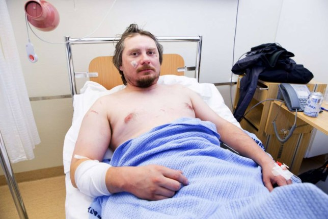 Jakub Moravec from Prague in the Czech Republic lies in his hospital bed at the Longyearbyen Hospital on Spitsbergen island, part of the Svalbard archipelago in the Arctic, on March 19, 2015. He was attacked by a polar bear whilst sleeping in a tent near Fredheim early that morning. The bear was eventually chased away and later put down. AFP PHOTO / NTB SCANPIX / HAKON MOSVOLD LARSEN   +++ NORWAY OUT +++Hakon Mosvold Larsen/AFP/Getty Images