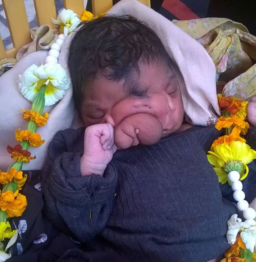 Aligarh, India - March 30, 2015: Newborn baby girl born on thursday has a deformed nose that looks like an elephant  trunk  and locals believe she is the incarnation of a Hindu God 'Ganesha'.    PHOTOGRAPHY BY: COVER ASIA PRESS